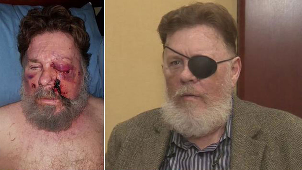 US man loses an eye after e-cigarette 'explodes in his face'