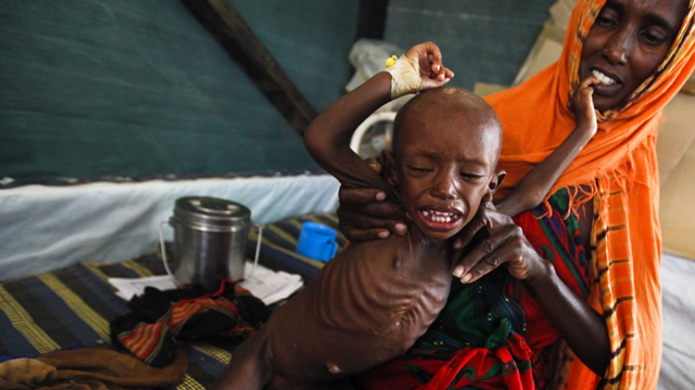 A Somali mother holds her severely malnourished baby boy at a clinic in sprawling Dadaab refugee camp, 2011. Source: AAP