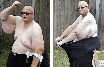 World's fattest man awaits US trip for life-saving skin surgery