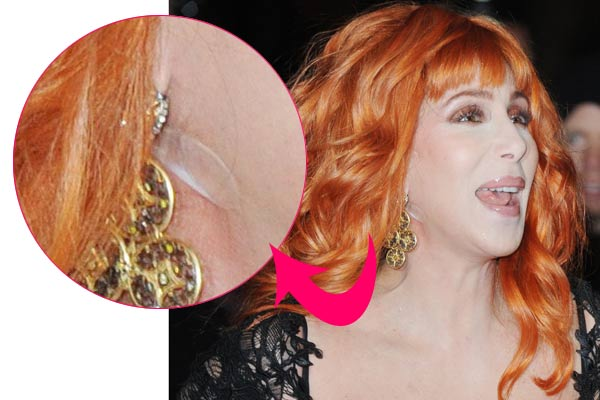 New Sticky! Cher turns back time with facelift tape - 9TheFix &TF11