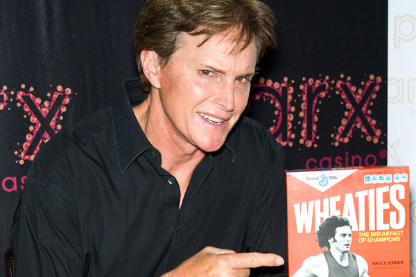 Bruce Jenner's face is scarily tight