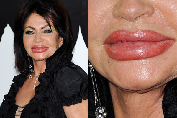 World's biggest trout pout? 90-year-old Jackie Stallone's lips take LA by storm