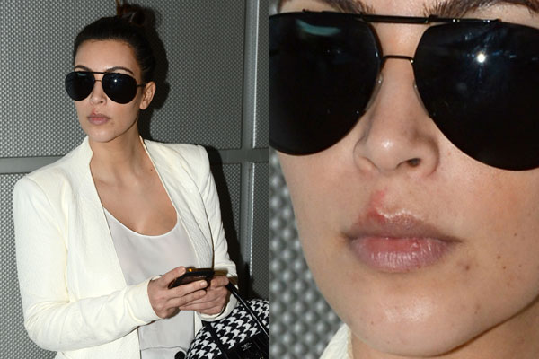 Out in the kold: Make-up-free Kim Kardashian shows off nasty cold