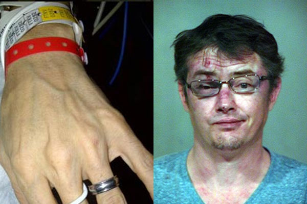 'A brutal attack': '90s star Jason London shows shocking bruises, claims he's innocent