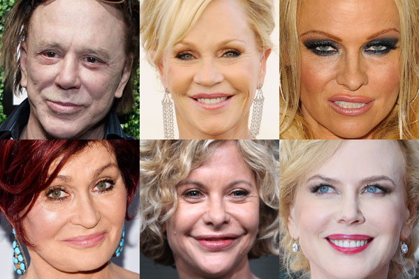 Celebrity plastic surgery disasters pictures of termites