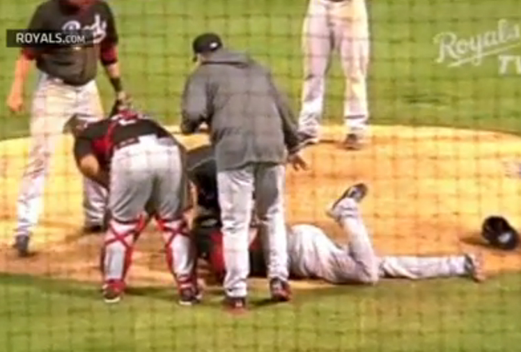 <b>An American pitcher has suffered multiple facial fractures in a sickening incident in Major League Baseball.</b><br/><br/>Aroldis Chapman was in action for the Cincinatti Reds when he was struck in the face by a line drive from Kansas City Royals catcher Salvador Perez.<br/><br/>He broke bones in his nose and near his left eye.<br/><br/>Line drives, or comebackers, carry significant risks to pitchers who have almost no time to react. Chapman's is one of a spate of brutal blows we've seen in recent years.<br/><br/>
