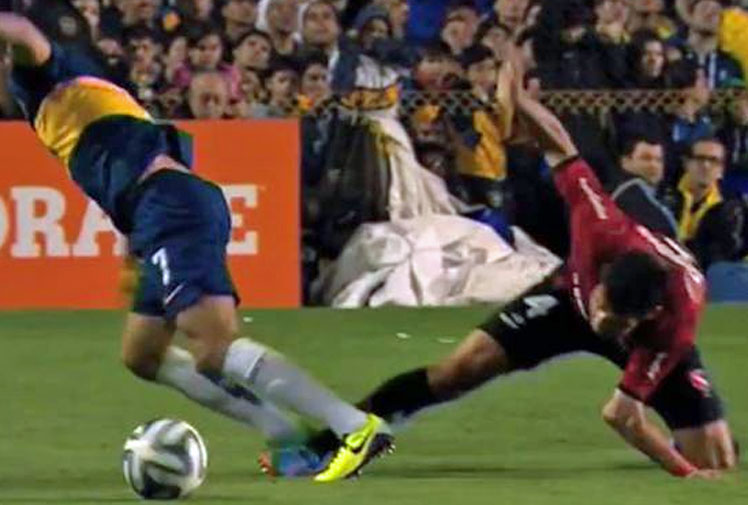 <b>A footballer in Argentina has laid claim to one of the sport's most sickening injuries after dislocating his elbow.</b><br/><br/>Marcos Caceres was playing for Newell's Old Boys against Boca Juniors when he fell awkwardly onto his left arm which then buckled under his weight.<br/><br/>The defender had to be stretchered off and is undergoing treatment. His injury joins a long list in football that are truly gut-wrenching.<br/><br/>