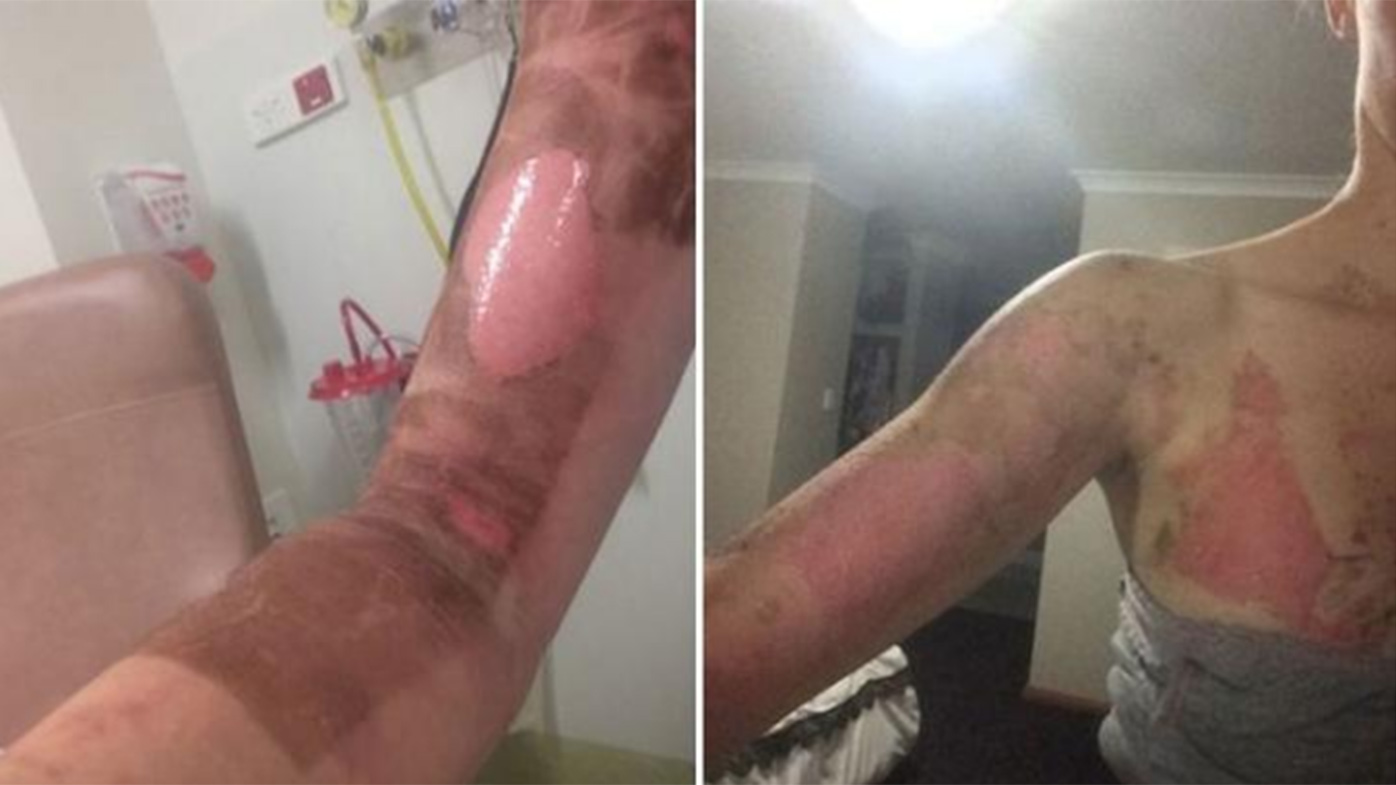 A burn allegedly caused by an exploding Thermomix.