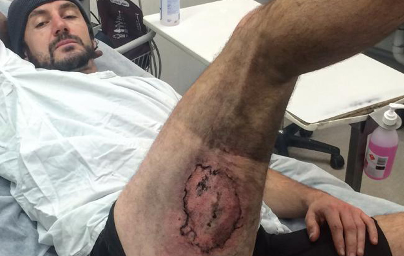 Sydney cyclist has skin graft surgery after phone explodes