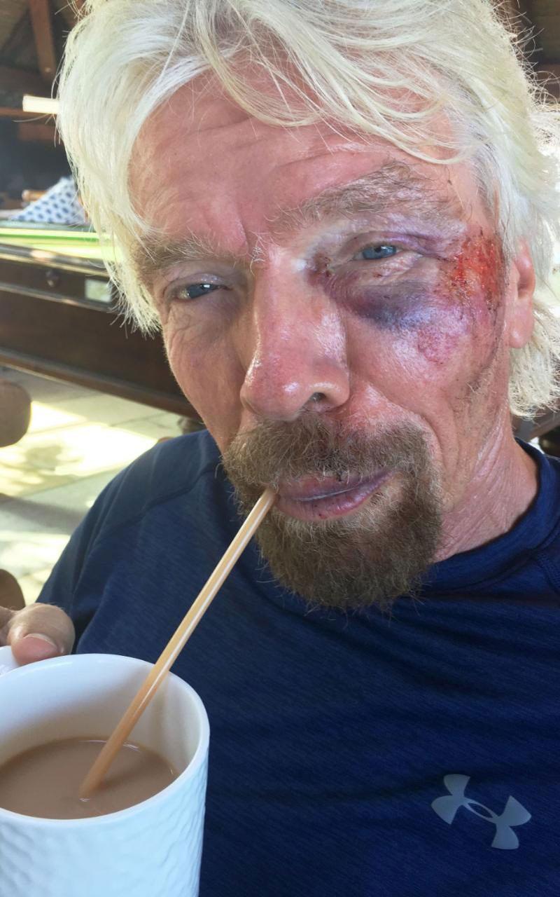 Virgin billionaire Sir Richard Branson recovering after crash. (Virgin)