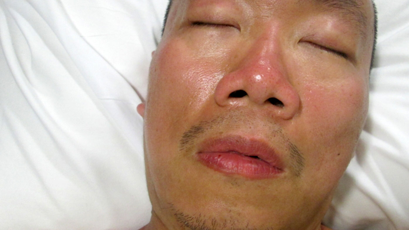 Appeal to identify mystery man found sunburnt and lost in Melbourne