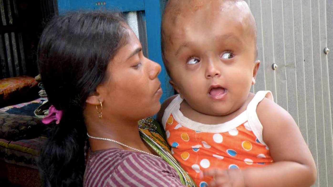 Indian girl Roona Begum with rare condition dies suddenly