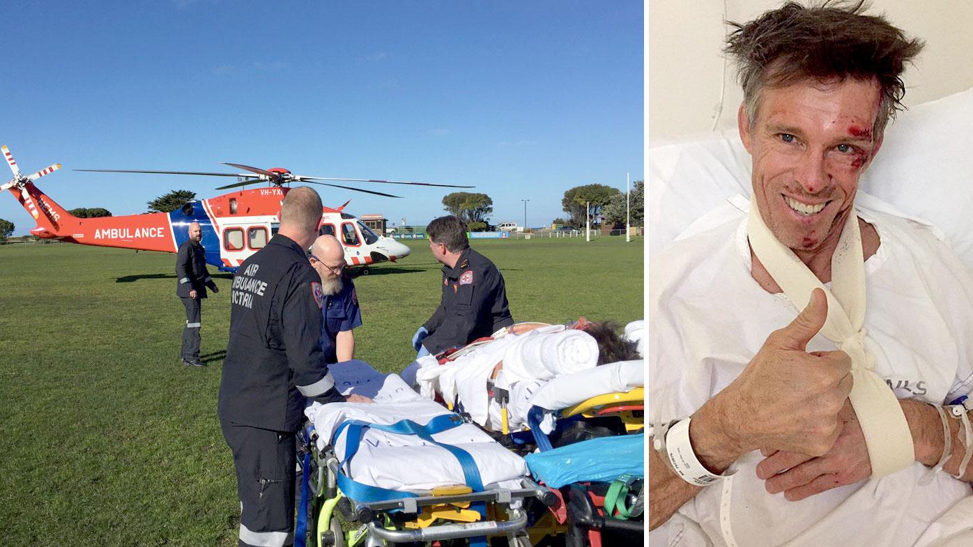 Aussie cycling legend hurt in Vic crash