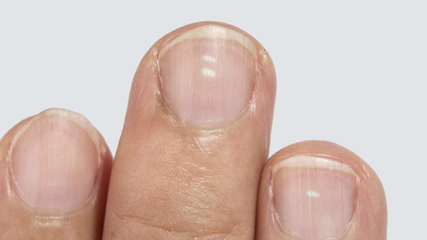 White spots on the nails, the fact that it is from a lack of vitamins is one thing. and there are any signs of this 20