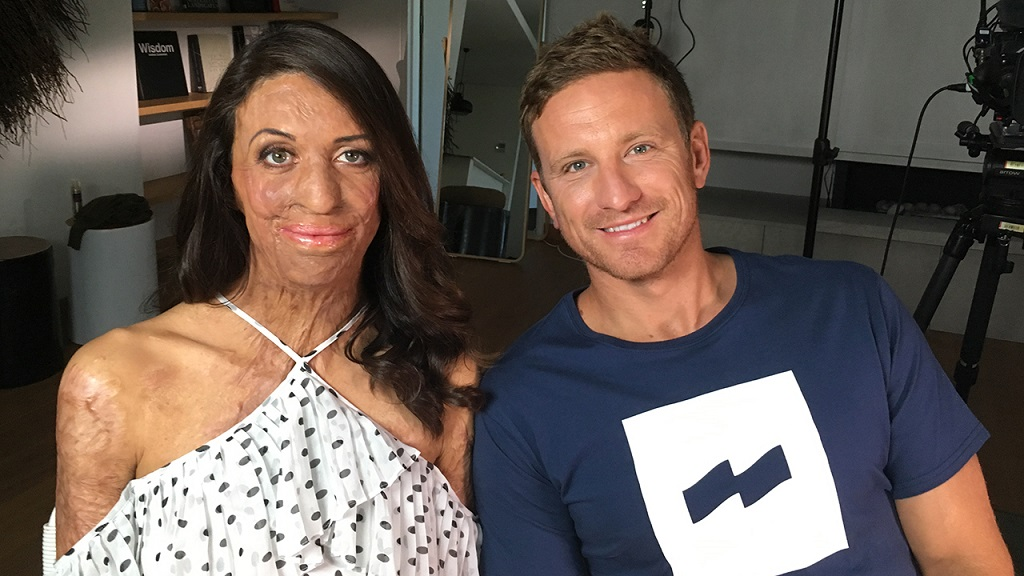 Turia Pitt is pregnant: 'We're stoked'