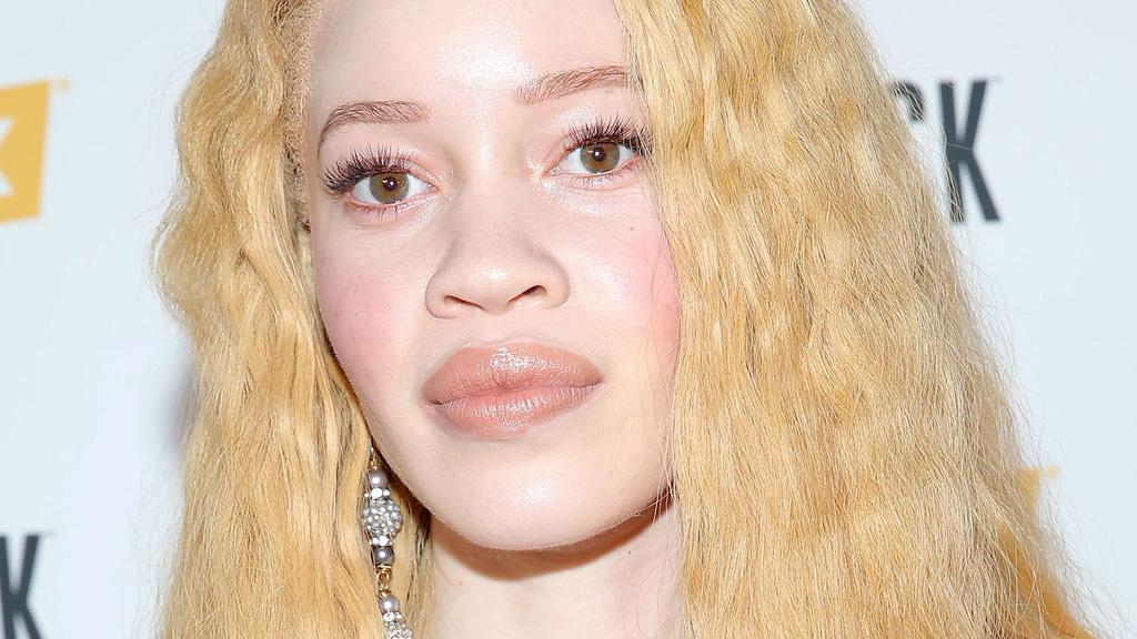 Albino model breaks beauty barriers