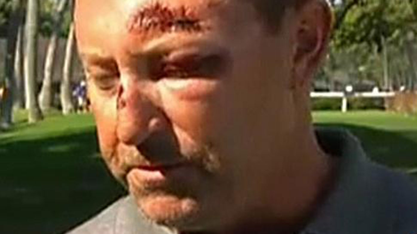 Robert Allenby still has nightmares over Hawaii bashing and robbery