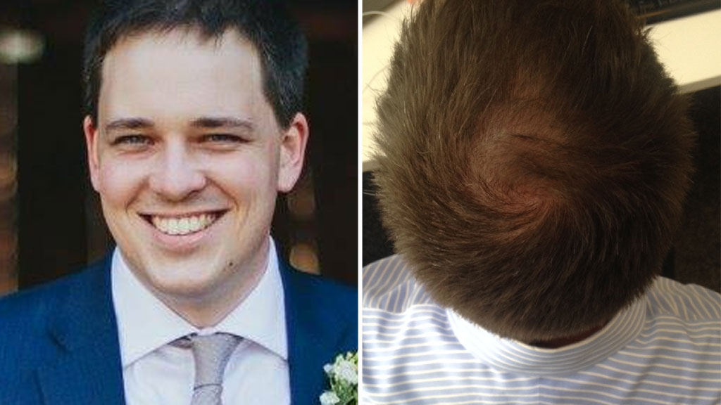 The front of my head (left), and the back of it.