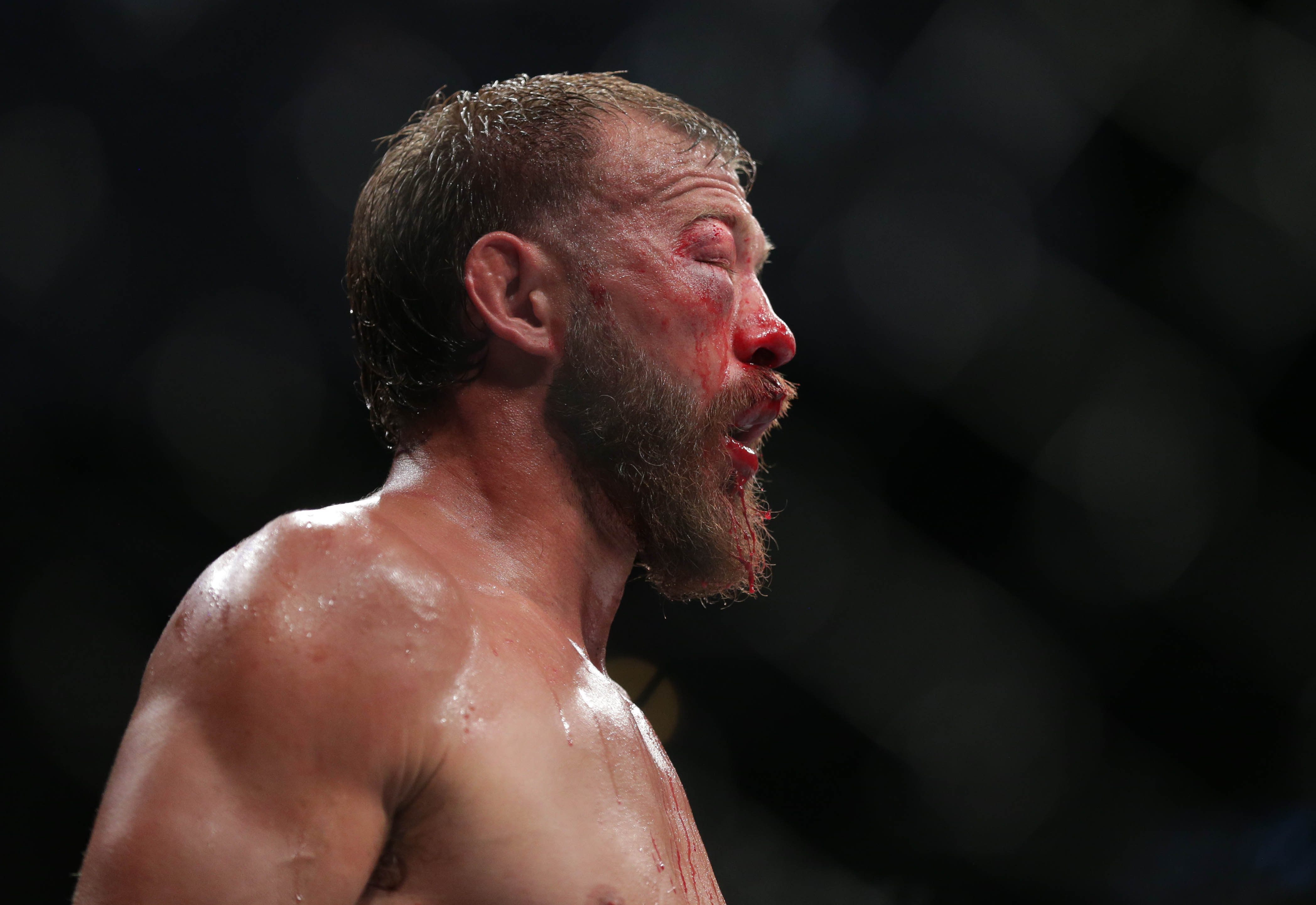 Donald Cerrone reacts after losing to Tony Ferguson (uring UFC 238 at United Center. Picture: Jerry Lai-USA TODAY Sports/Sipa USA.