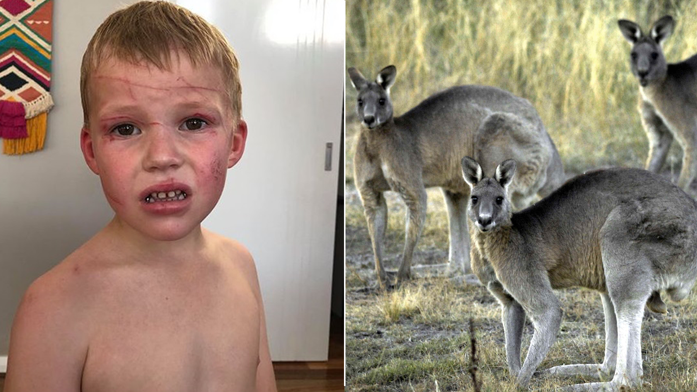 'I saw a cloud of dust and a kangaroo mauling my kid to death'