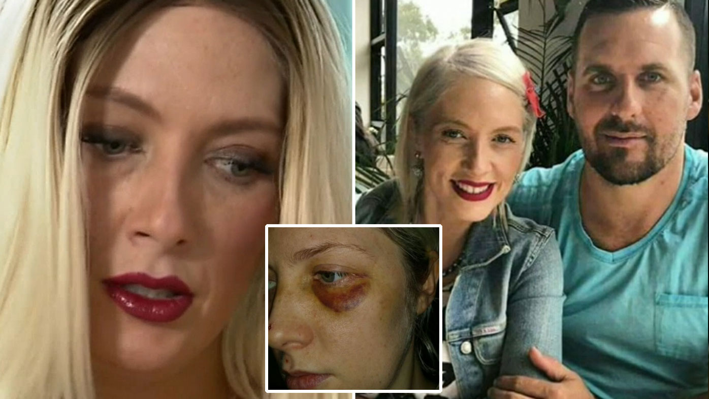 Ex-NRL player's wife Brett Seymour says he has problems with