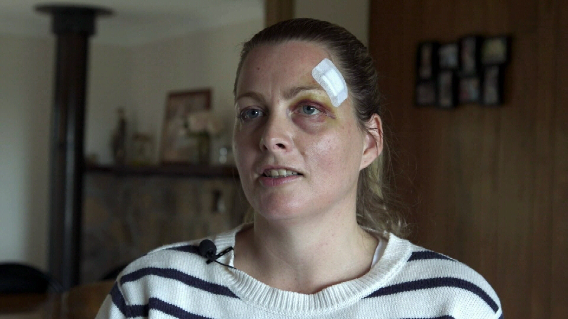 Nurse 'punched in the head' by patient