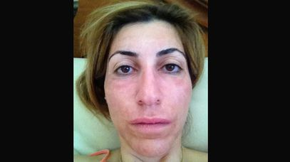 Mary Moujaber three months after her laser treatment. Her skin is still showing signs of pigmentation and redness.
