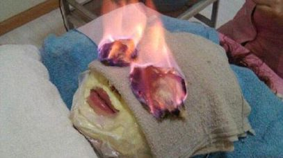 "Woman receiving a Chinese ""fire facial""."