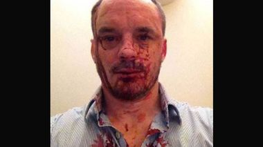 A photo of Christopher Bryant after the attack.