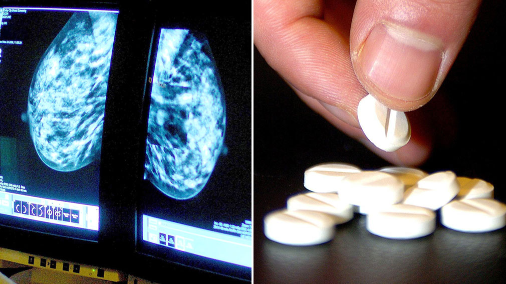 Breast cancer: Aspirin touted as possible treatment for