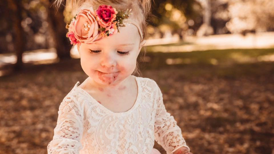 Lylah, 4, has a rare condition which causes her skin to blister and tear at the slightest touch.