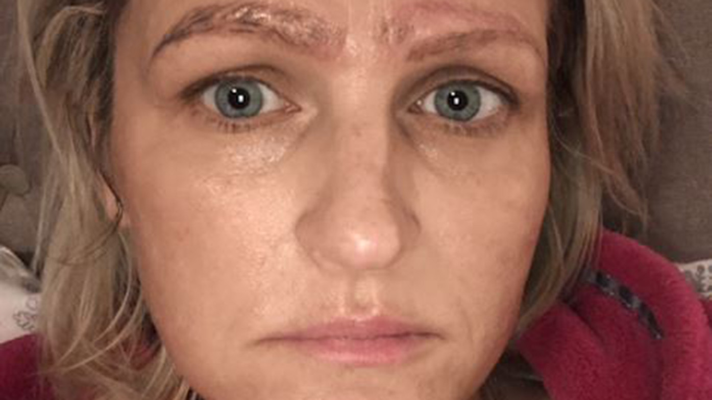 Botched microblading procedure leaves woman with crazy brows