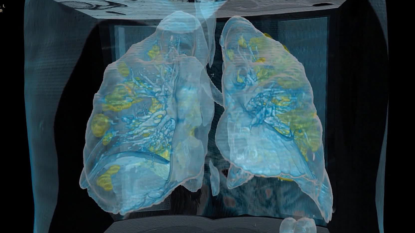 COVID-19 patients who should be gasping for air but aren't