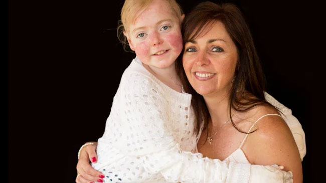 Simone Baird, spokesperson for DEBRA Australia, is pictured here with her daughter Eliza, who died in 2017.