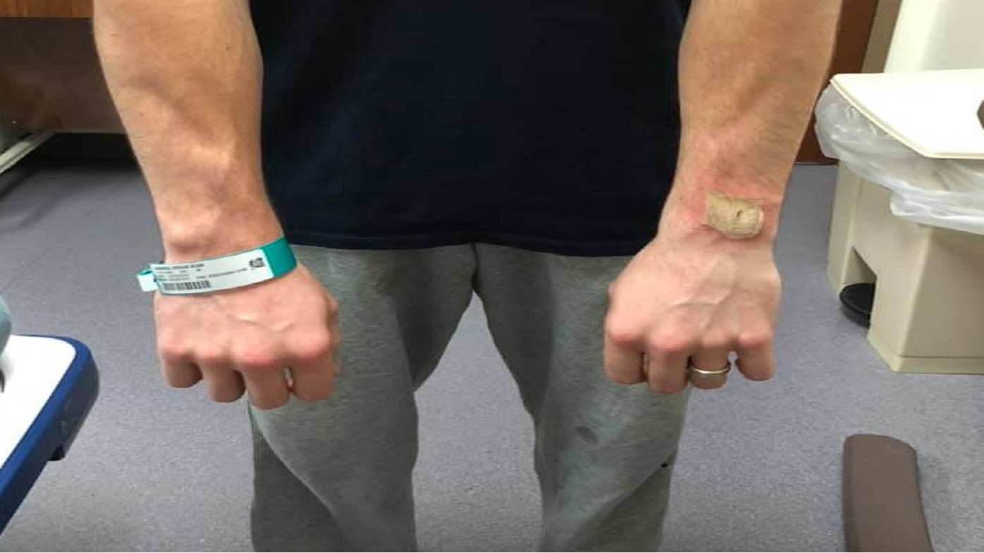 Man suffers 'third-degree burns' after Fitbit allegedly explodes