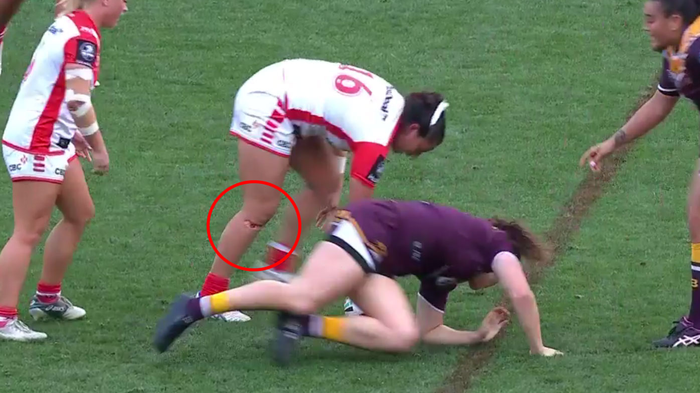 Weatherall suffered the knee gash during the NRLW grand final