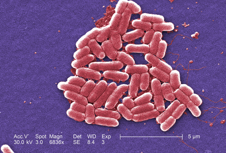 E-Coli bacteria as seen under a microscope.