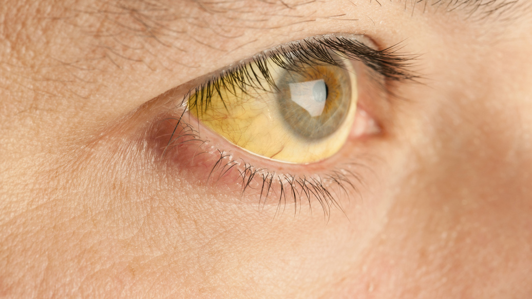 Chelsey was suffering from jaundice, which makes the eyes appear yellow. (Stock photo)