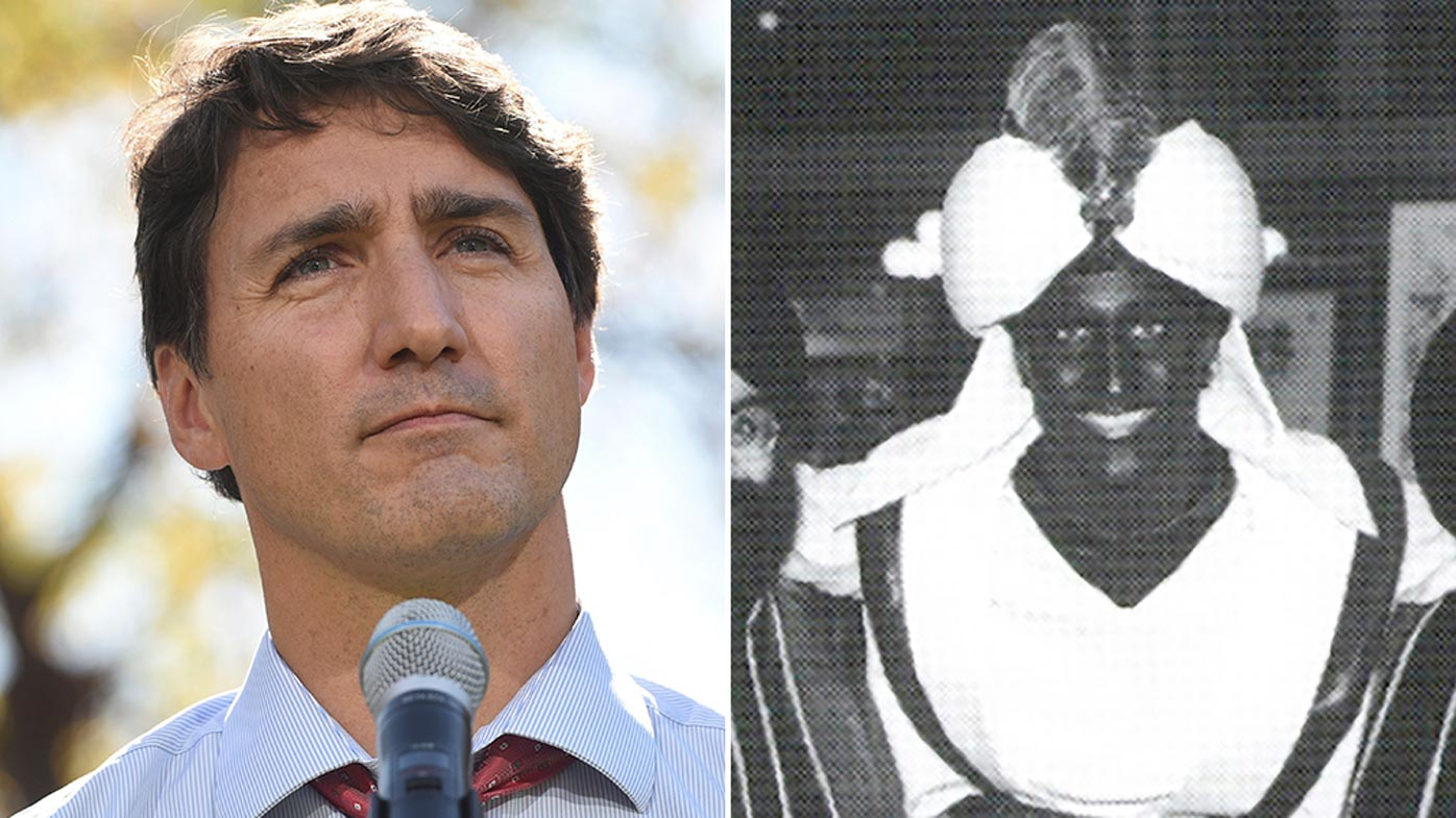 Trudeau 'not sure' how many times he wore brownface