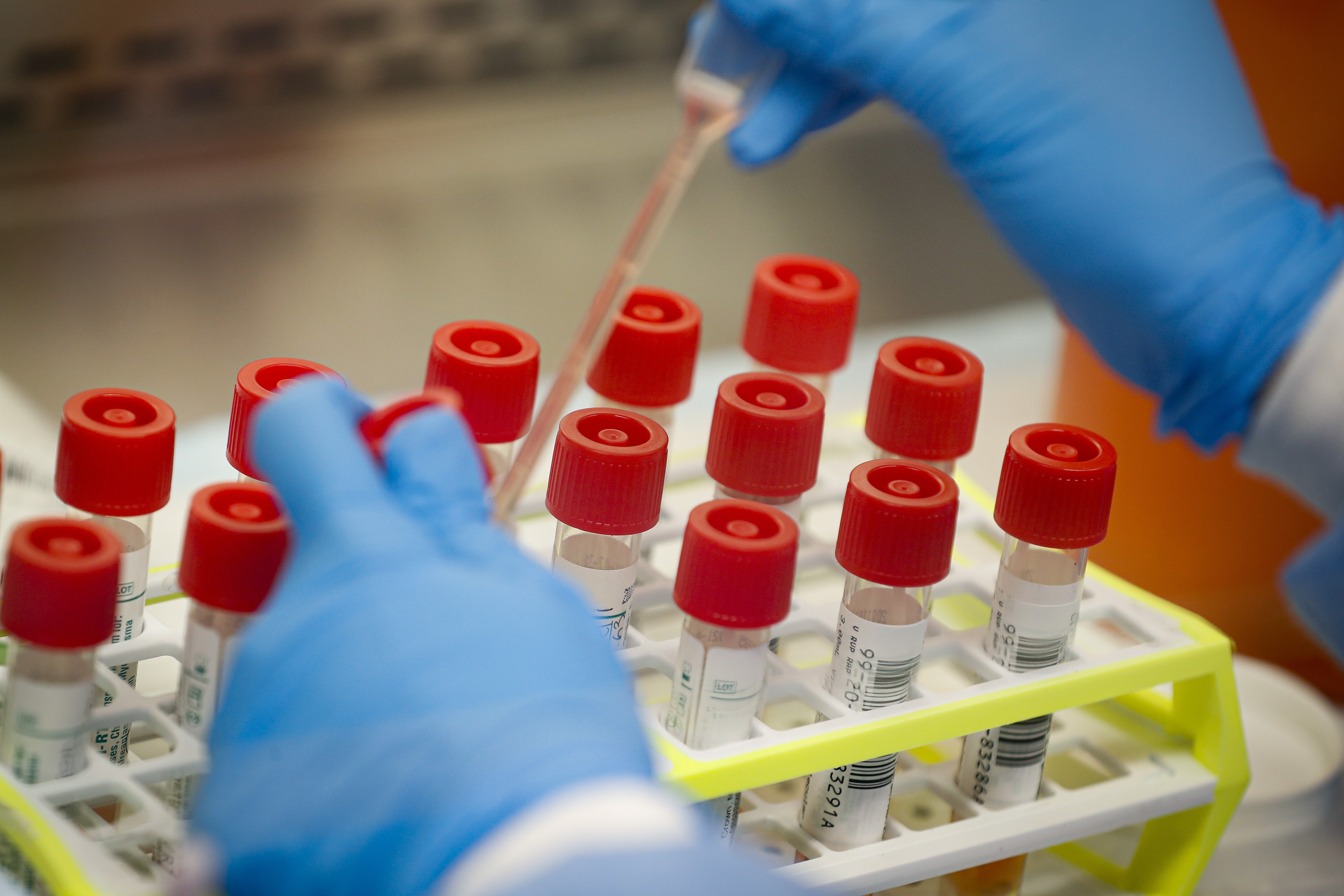 Australian COVID-19 vaccine shows promising  results