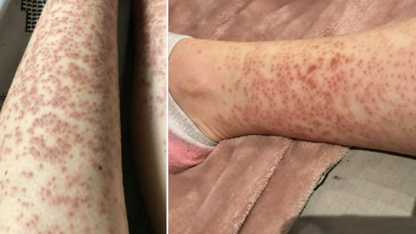 Woman Left With Burns After Laser Hair Removal Radio Jukebox