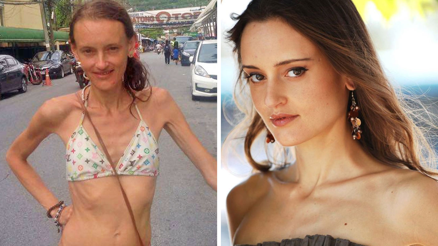 Jeanette Clabassi was born with an ultra rare condition called abdominal cocoon syndrome, which caused her to lose a drastic amount of weight over the years as her bowel was slowly strangled.