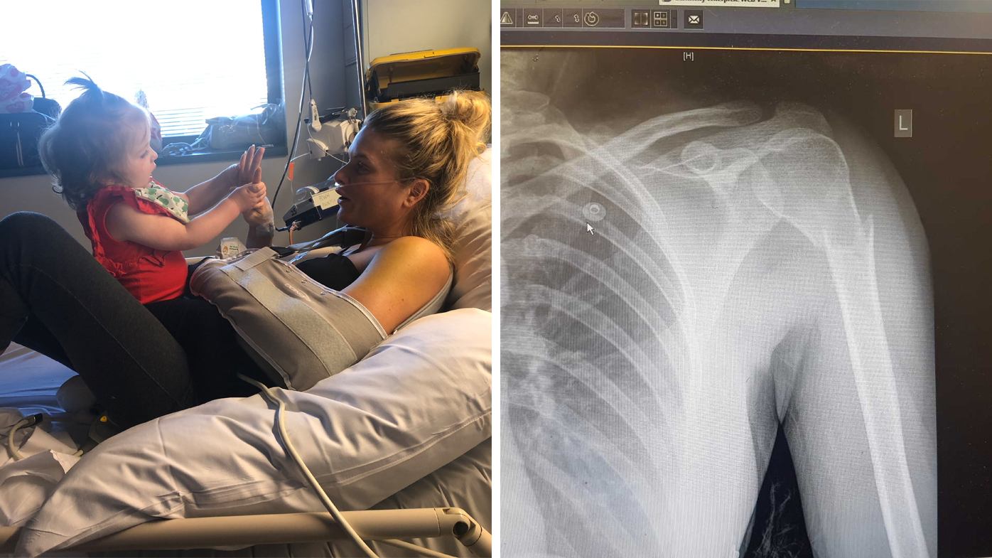 Erin Molan out of hospital after falling down stairs